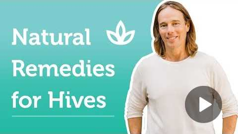 Recommendations for Chronic Hives | Dr. Group