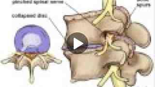 Heart AFib is a Back problem Dr Joel Wallach